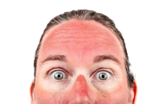 ژل آلوئه ورا درمان آفتاب سوختگی